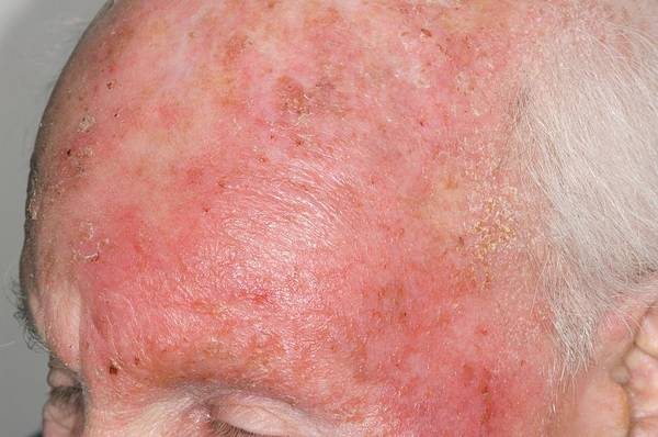 Inflammation Wall Art - Photograph - Dermatitis Of The Head From Drug Allergy by Dr P. Marazzi/science Photo Library