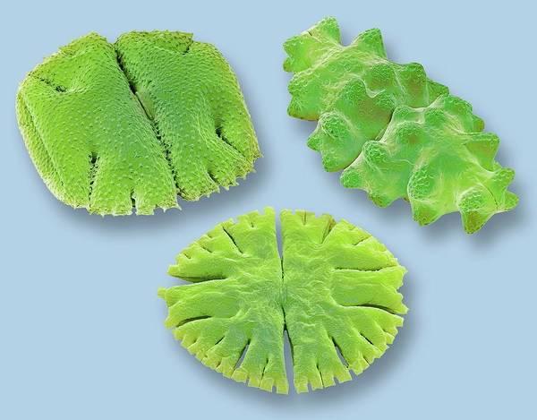 Aquatic Plants Photograph - Desmids by Steve Gschmeissner
