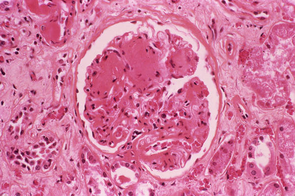 Wall Art - Photograph - Diabetic Kidney by Cnri/science Photo Library