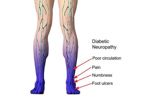 Diabetic Neuropathy Art Print by Carol & Mike Werner
