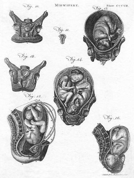 Wall Art - Drawing - Diagrams Of Foetuses In A Medical Book by Mary Evans Picture Library