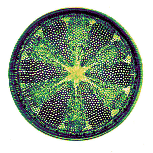 Photograph - Diatom, Heliopelta Metil, Early by Science Source