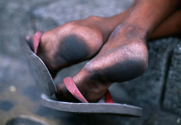 Flip Flops Photograph - Dirty Feet by Jeremy Bishop/science Photo Library