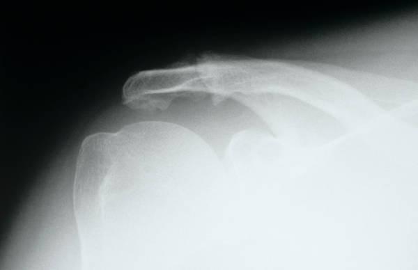 Disintegration Wall Art - Photograph - Disintegrating Bone by Mike Devlin/science Photo Library