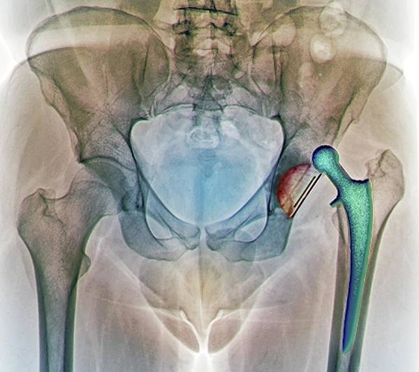 Hip Photograph - Dislocated Hip Replacement, X-ray by Zephyr
