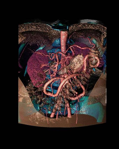 Artery Wall Art - Photograph - Distended Mesenteric Artery by Anders Persson, Cmiv