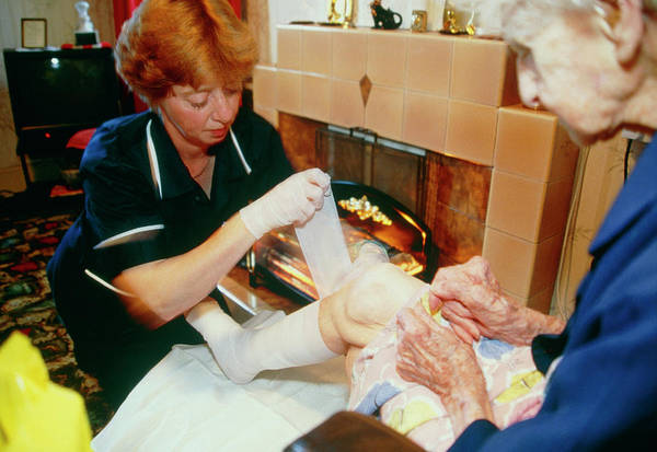 Senior Photograph - District Nurse Bandages Elderly Woman's Leg Ulcer by Antonia Reeve/science Photo Library