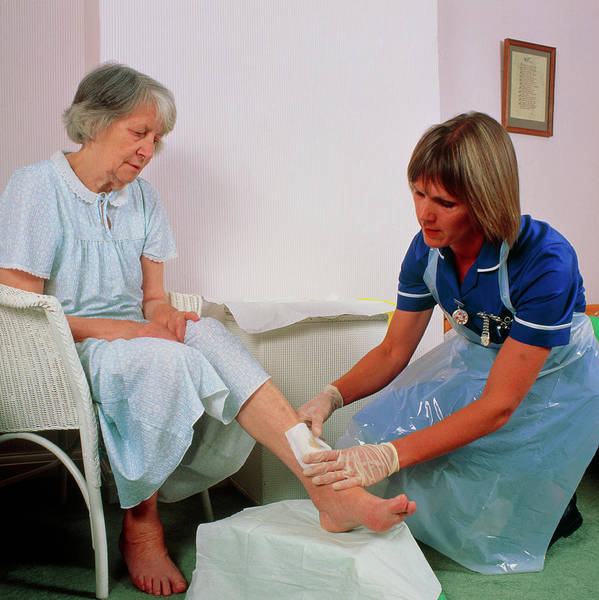 Wall Art - Photograph - District Nurse Bandages Leg Ulcer On Old Woman by Chris Priest/science Photo Library