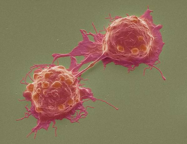 Gi Photograph - Dividing Colorectal Cancer Cells by Steve Gschmeissner