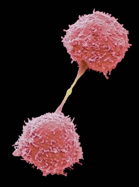 Immune Cell Wall Art - Photograph - Dividing Lymphocytes by Steve Gschmeissner