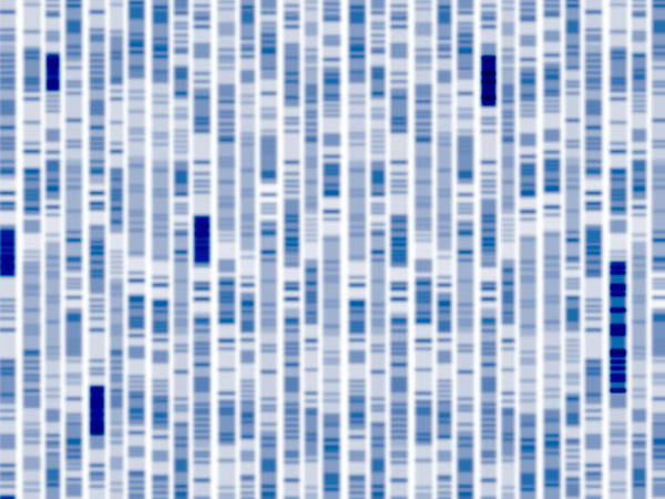 Autoradiogram Photograph - Dna Autoradiogram by Alfred Pasieka/science Photo Library