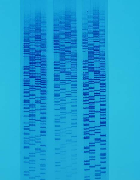 Autoradiogram Photograph - Dna Autoradiogram by John Mclean/science Photo Library