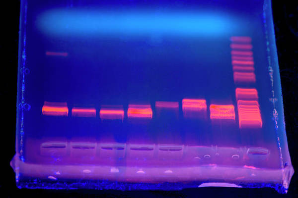 Autoradiogram Photograph - Dna Electrophoresis Under Uv Light by Louise Murray