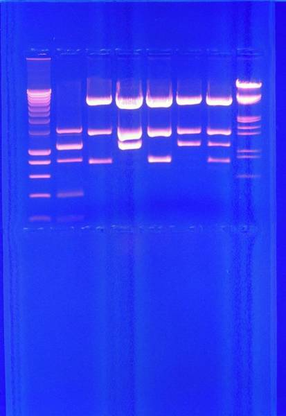 Sequence Photograph - Dna Sequence Fluorescing Under Ultraviolet Light by Pascal Goetgheluck/science Photo Library
