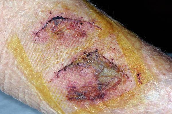 Dog Treat Photograph - Dog Bite Wounds After Suturing by Dr P. Marazzi/science Photo Library
