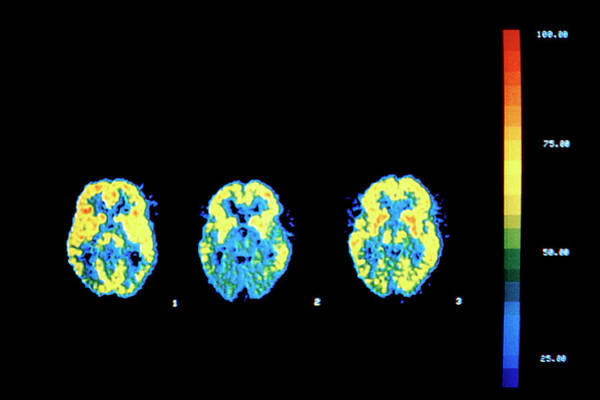 Brain Cancer Wall Art - Photograph - Drug Treatment Of Aids Dementia by National Cancer Institute/science Photo Library