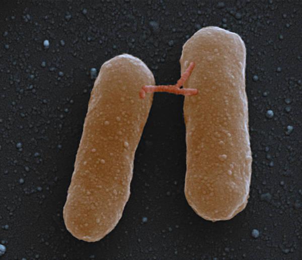 Wall Art - Photograph - E. Coli Escherichia Coli Bacteria by Eye of Science