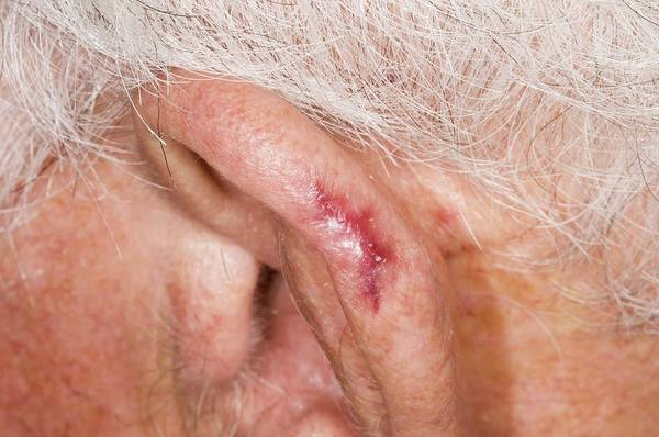 Heal Wall Art - Photograph - Ear Healed After Removing Skin Cancer by Dr P. Marazzi/science Photo Library