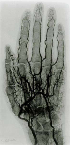 Diagnosis Wall Art - Photograph - Early X-ray Arteriogram Of A Human Hand by Science Photo Library