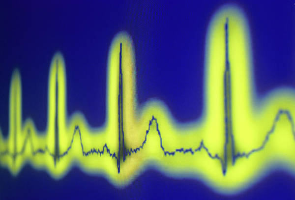 Wall Art - Photograph - Ecg Of A Normal Heart Rate by Daniel Sambraus/science Photo Library