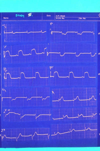 Heart Attack Wall Art - Photograph - Ecg Pattern Of Person Suffering A Heart Attack by Science Photo Library.