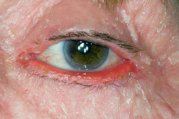 Wall Art - Photograph - Ectropion Of Eye With Facial Eczema by Dr P. Marazzi/science Photo Library