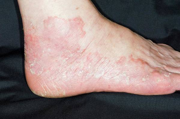 Scaling Photograph - Eczema On The Foot by Dr P. Marazzi/science Photo Library