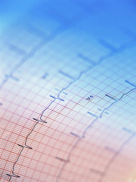Trace Photograph - Electrocardiogram by Steve Allen/science Photo Library