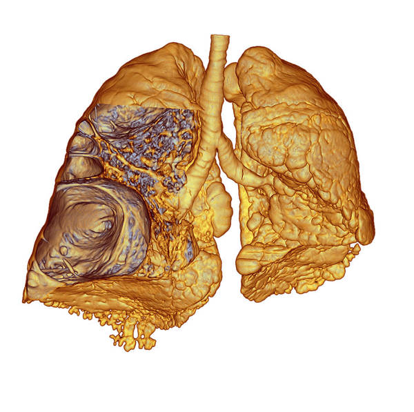 Wall Art - Photograph - Emphysema Of The Lungs by Du Cane Medical Imaging Ltd