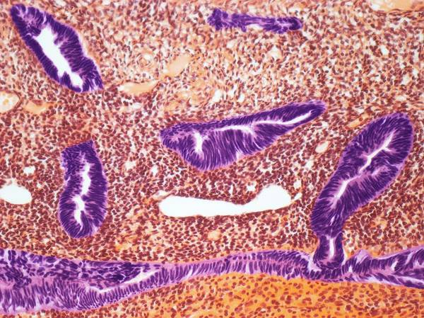 Malignant Wall Art - Photograph - Endometrial Cancer by Steve Gschmeissner