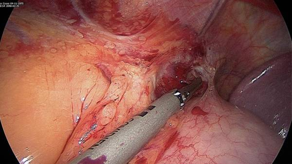 Fatty Tissue Photograph - Endoscope View Of Abdominal Surgery by Dr P. Marazzi/science Photo Library