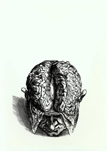 De Humani Corporis Fabrica Photograph - Engraving Of Historical Brain Dissection by Science Photo Library