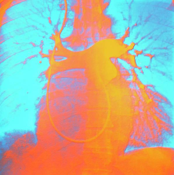 Enlarged Heart Art Print