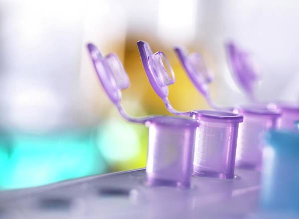 Wall Art - Photograph - Eppendorf Tubes by Tek Image/science Photo Library