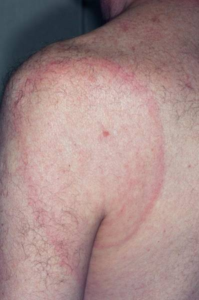 Wall Art - Photograph - Erythema Annulare Centrifugum by Dr P. Marazzi/science Photo Library