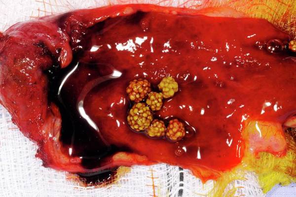 Excised Gallbladder And Gallstones Art Print by Dr P. Marazzi/science Photo Library