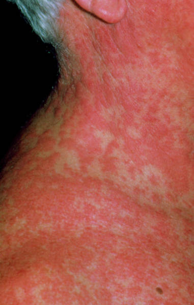 Reaction Wall Art - Photograph - Extensive Rash Due To Drug Reaction by Dr P. Marazzi/science Photo Library