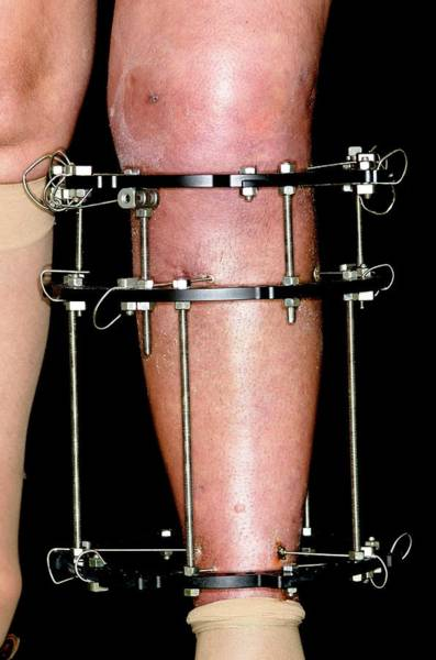 Wall Art - Photograph - External Fixator For Broken Leg by Dr P. Marazzi/science Photo Library