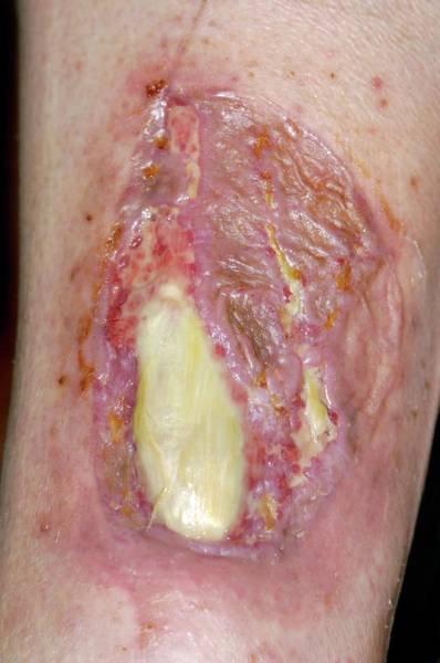 Carcinoma Wall Art - Photograph - Failed Skin Graft For Skin Cancer by Dr P. Marazzi/science Photo Library