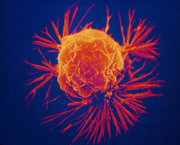 Cancer Wall Art - Photograph - False-col Sem Of Single Cancer Cell by National Cancer Institute/science Photo Library