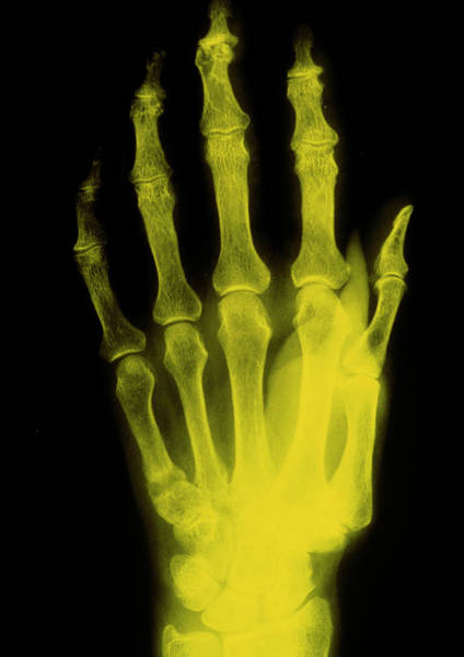 Softening Photograph - False Col X-ray Image Of Hand Showing Osteomalacia by Science Photo Library