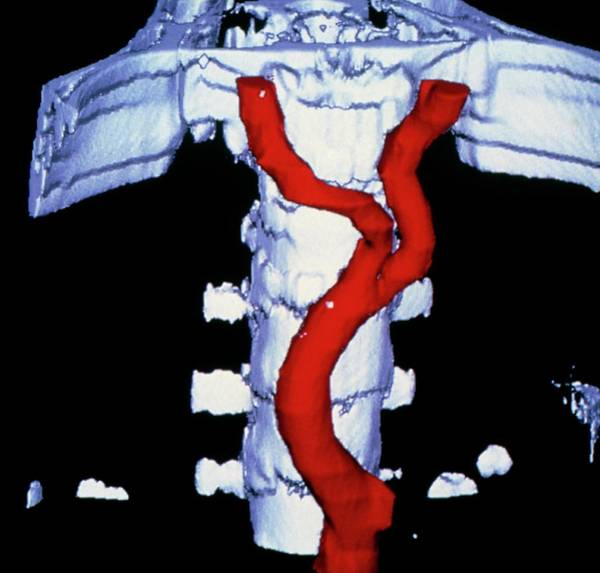Abdominal Photograph - False-colour 3-d Ct Image Of Abdominal Aorta by Cnri/science Photo Library