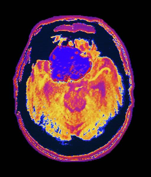 Brain Cancer Wall Art - Photograph - False-colour Ct Scan Showing Brain Tumour by Mehau Kulyk/science Photo Library