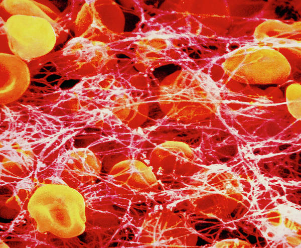 Microscopic Photograph - False-colour Sem Of A Clot Occuring In Human Blood by Photo Insolite Realite/science Photo Library