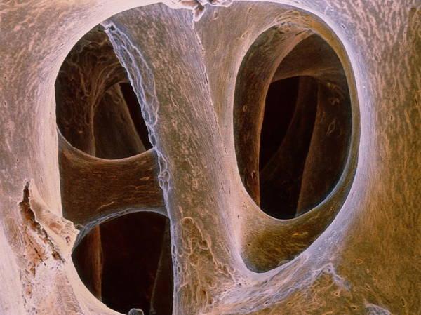Wall Art - Photograph - False-colour Sem Of Spongy Bone by Prof. P. Mottadept. Of Anatomyuniversity \la Sapienza\, Rome