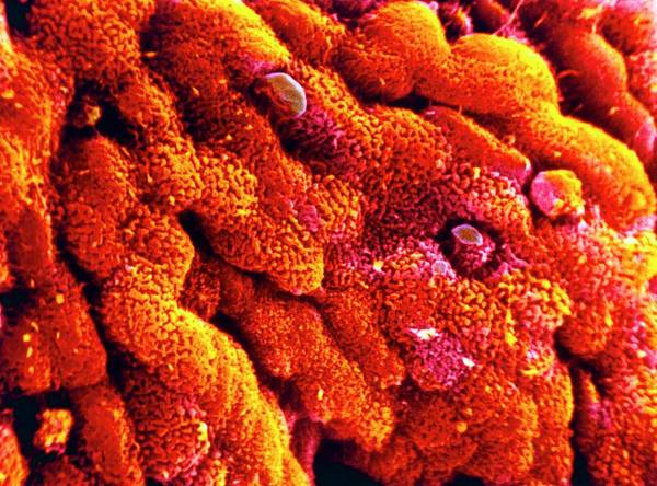 Crypt Photograph - False-colour Sem Of The Wall Of The Human Colon by Cnri/science Photo Library