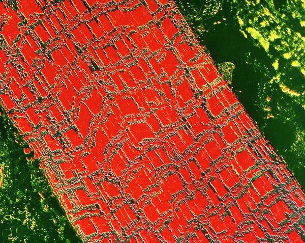 Voluntary Muscle Photograph - False-colour Tem Of Human Striated Skeletal Muscle by Science Photo Library