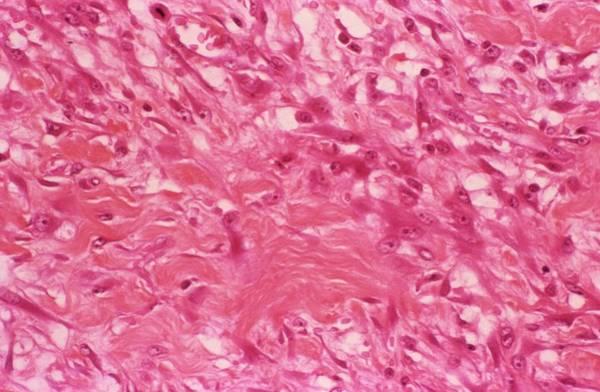 Light Microscope Wall Art - Photograph - Fasciitis by Cnri