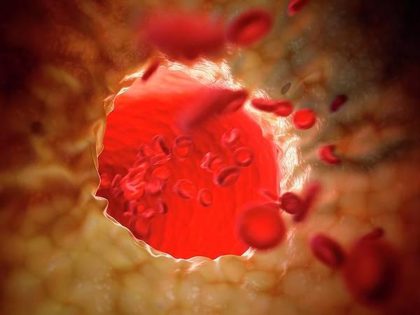 Wall Art - Photograph - Fatty Human Artery by Sebastian Kaulitzki/science Photo Library
