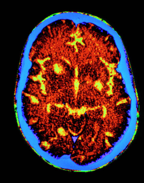 Cerebral Photograph - F/col Ct Scan Of Brain With Toxoplasmosis In Aids by Gca/science Photo Library